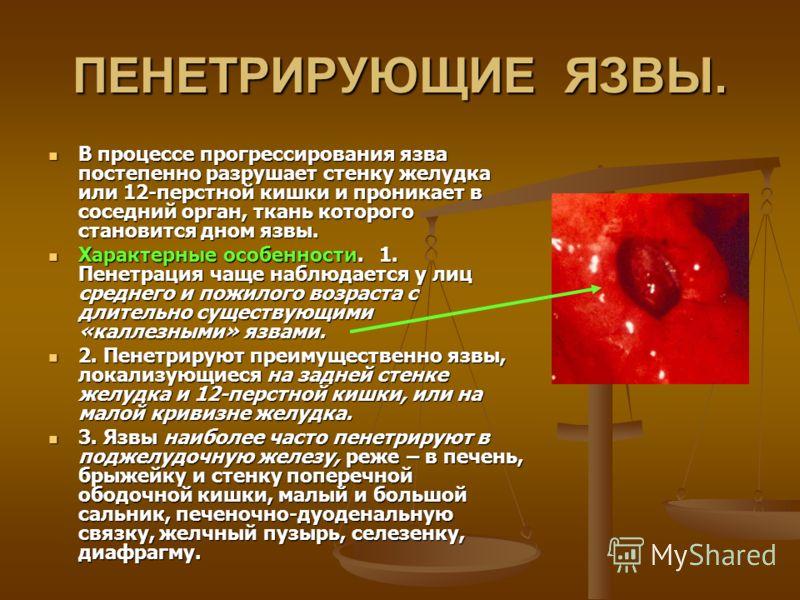 ПЕНЕТРИРУЮЩИЕ ЯЗВЫ. В процессе прогрессирования язва постепенно разрушает стенку желудка или 12-перстной кишки и проникает в соседний орган, ткань которого становится дном язвы. В процессе прогрессирования язва постепенно разрушает стенку желудка или