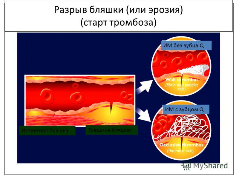 Разрыв бляшки (или эрозия) (старт тромбоза) Интактная бляшка Трещина бляшки ИМ с зубцом Q ИМ без зубца Q
