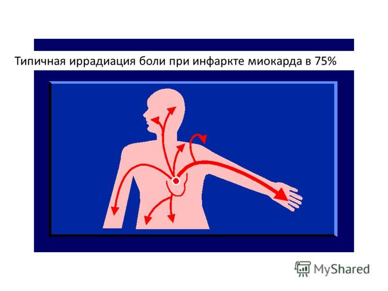 Типичная иррадиация боли при инфаркте миокарда в 75%
