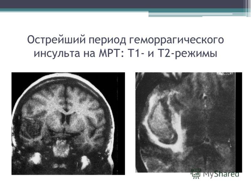 Острейший период геморрагического инсульта на МРТ: Т1- и Т2-режимы