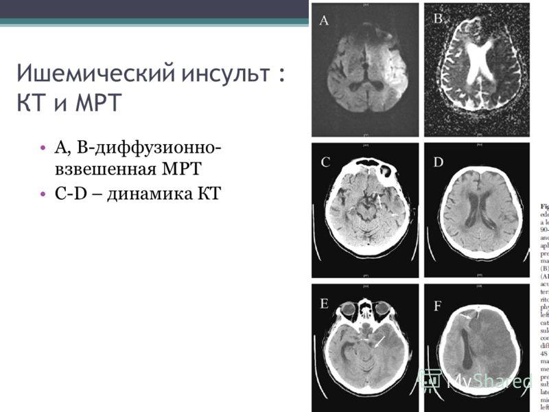 Ишемический инсульт : КТ и МРТ А, B-диффузионно- взвешенная МРТ C-D – динамика КТ