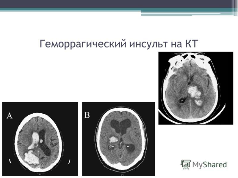 Геморрагический инсульт на КТ
