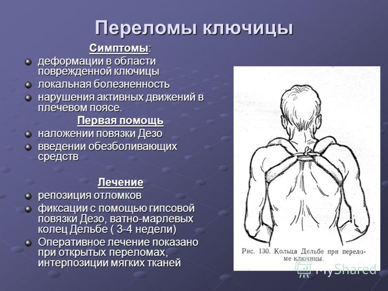 Переломы ключицы Симптомы: деформации в области поврежденной ключицы локальная болезненность нарушения активных движений в плечевом поясе. Первая помощь наложении повязки Дезо введении обезболивающих средств Лечение репозиция отломков фиксации с помо