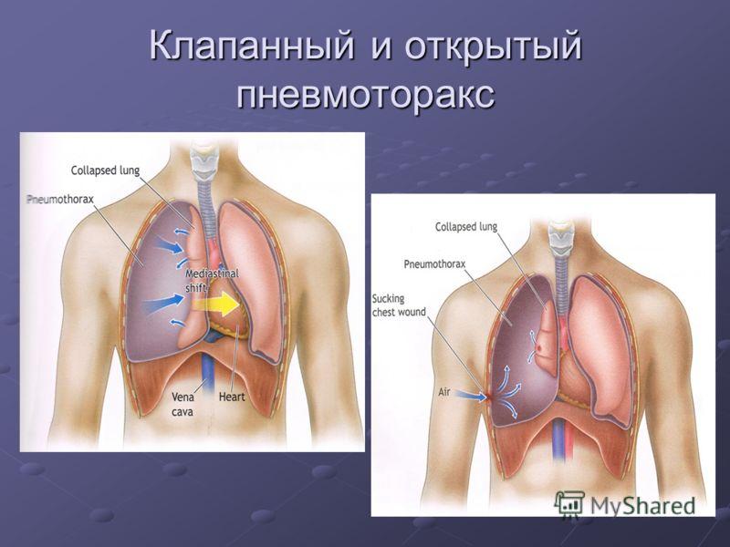 Пневмоторакс фото