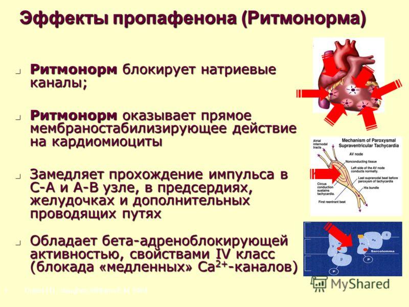Эффекты пропафенона (Ритмонорма) Ритмонорм блокирует натриевые каналы; Ритмонорм блокирует натриевые каналы; Ритмонорм оказывает прямое мембраностабилизирующее действие на кардиомиоциты Ритмонорм оказывает прямое мембраностабилизирующее действие на к