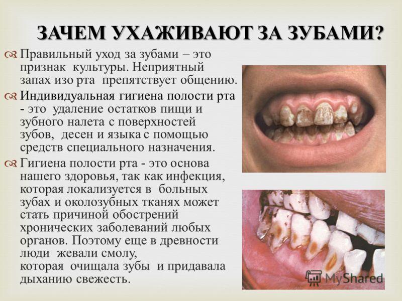ЗАЧЕМ УХАЖИВАЮТ ЗА ЗУБАМИ ? П равильный у ход з а з убами – э то признак к ультуры. Н еприятный запах и зо р та п репятствует о бщению. И ндивидуальная г игиена п олости р та - э то у даление о статков п ищи и зубного н алета с п оверхностей зубов, д