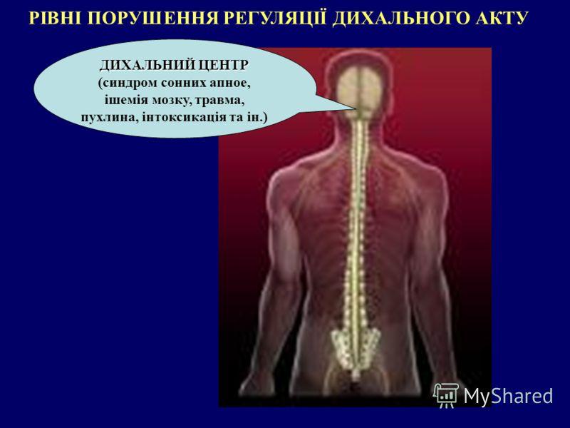 РІВНІ ПОРУШЕННЯ РЕГУЛЯЦІЇ ДИХАЛЬНОГО АКТУ ДИХАЛЬНИЙ ЦЕНТР ДИХАЛЬНИЙ ЦЕНТР (синдром сонних апное, ішемія мозку, травма, пухлина, інтоксикація та ін.)