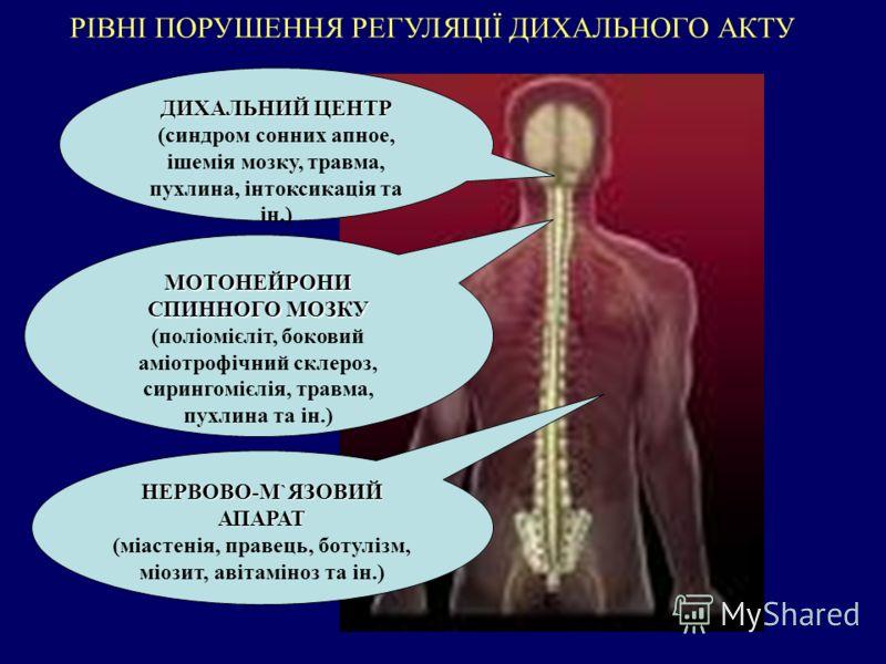 РІВНІ ПОРУШЕННЯ РЕГУЛЯЦІЇ ДИХАЛЬНОГО АКТУ ДИХАЛЬНИЙ ЦЕНТР ДИХАЛЬНИЙ ЦЕНТР (синдром сонних апное, ішемія мозку, травма, пухлина, інтоксикація та ін.) МОТОНЕЙРОНИ СПИННОГО МОЗКУ (поліомієліт, боковий аміотрофічний склероз, сирингомієлія, травма, пухлин