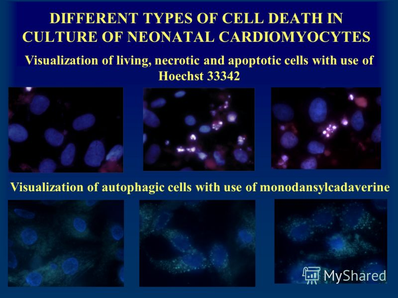 DIFFERENT TYPES OF CELL DEATH IN CULTURE OF NEONATAL CARDIOMYOCYTES Visualization of living, necrotic and apoptotic cells with use of Hoechst 33342 Visualization of autophagic cells with use of monodansylcadaverine
