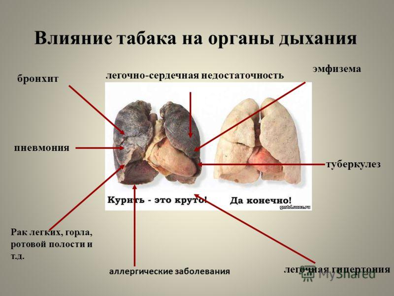 Влияние табака на органы дыхания пневмония бронхит Рак легких, горла, ротовой полости и т.д. легочная гипертония легочно-сердечная недостаточность эмфизема аллергические заболевания туберкулез