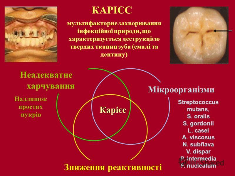 КАРІЄС мультифакторне захворювання інфекційної природи, що характеризується деструкцією твердих тканин зуба (емалі та дентину) Streptococcus mutans, S. oralis S. gordonii L. casei A. viscosus N. subflava V. dispar P. intermedia F. nucleatum Карієс Мі