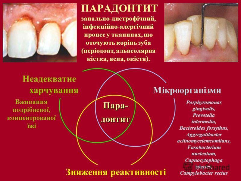 ПАРАДОНТИТ запально-дистрофічний, інфекційно-алергічний процес у тканинах, що оточують корінь зуба (періодонт, альвеолярна кістка, ясна, окістя). Porphyromonas gingivalis, Prevotella intermedia, Bacteroides forsythus, Aggregatibacter actinomycetemcom