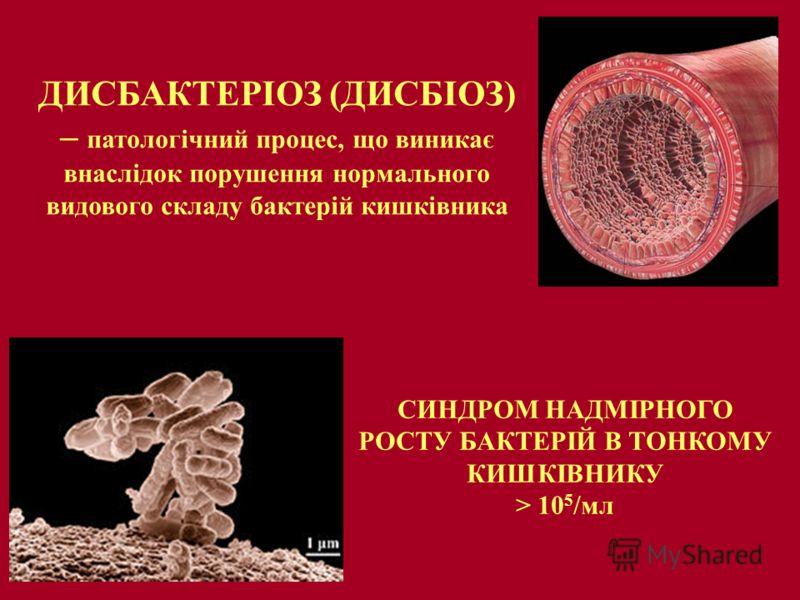 ДИСБАКТЕРІОЗ (ДИСБІОЗ) – патологічний процес, що виникає внаслідок порушення нормального видового складу бактерій кишківника СИНДРОМ НАДМІРНОГО РОСТУ БАКТЕРІЙ В ТОНКОМУ КИШКІВНИКУ > 10 5 /мл