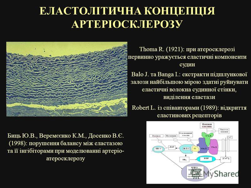 ЕЛАСТОЛІТИЧНА КОНЦЕПЦІЯ АРТЕРІОСКЛЕРОЗУ Thoma R. (1921): при атеросклерозі первинно уражується еластичні компоненти судин Balo J. та Banga I.: екстракти підшлункової залози найбільшою мірою здатні руйнувати еластичні волокна судинної стінки, виділенн