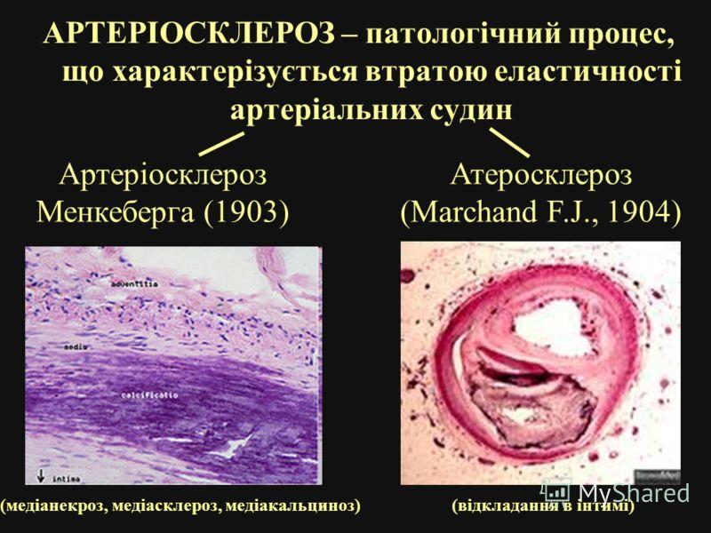 АРТЕРІОСКЛЕРОЗ – патологічний процес, що характерізується втратою еластичності артеріальних судин Атеросклероз (Marchand F.J., 1904) Артеріосклероз Менкеберга (1903) (медіанекроз, медіасклероз, медіакальциноз)(відкладання в інтимі)
