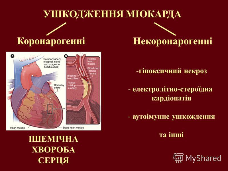 УШКОДЖЕННЯ МІОКАРДА Коронарогенні Некоронарогенні -гіпоксичний некроз - електролітно-стероїдна кардіопатія - аутоімунне ушкождення та інші ІШЕМІЧНА ХВОРОБА СЕРЦЯ