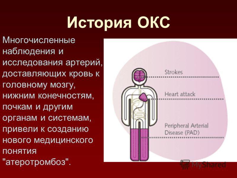История ОКС Многочисленные наблюдения и исследования артерий, доставляющих кровь к головному мозгу, нижним конечностям, почкам и другим органам и системам, привели к созданию нового медицинского понятия атеротромбоз.
