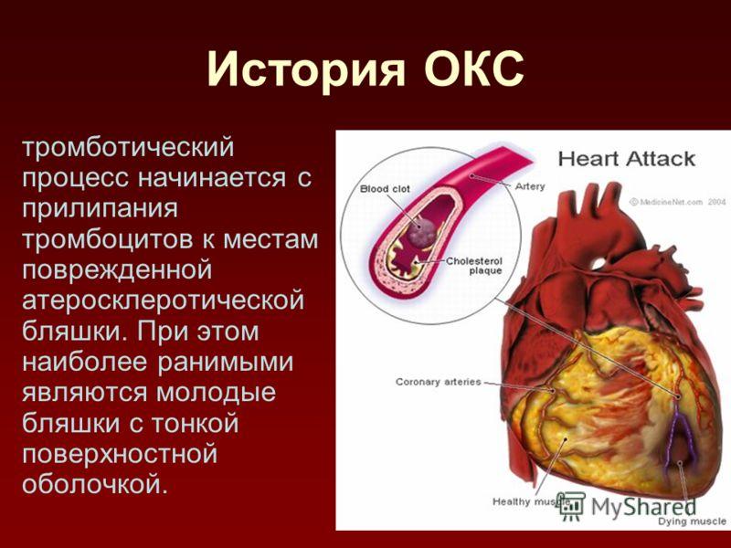 История ОКС тромботический процесс начинается с прилипания тромбоцитов к местам поврежденной атеросклеротической бляшки. При этом наиболее ранимыми являются молодые бляшки с тонкой поверхностной оболочкой.