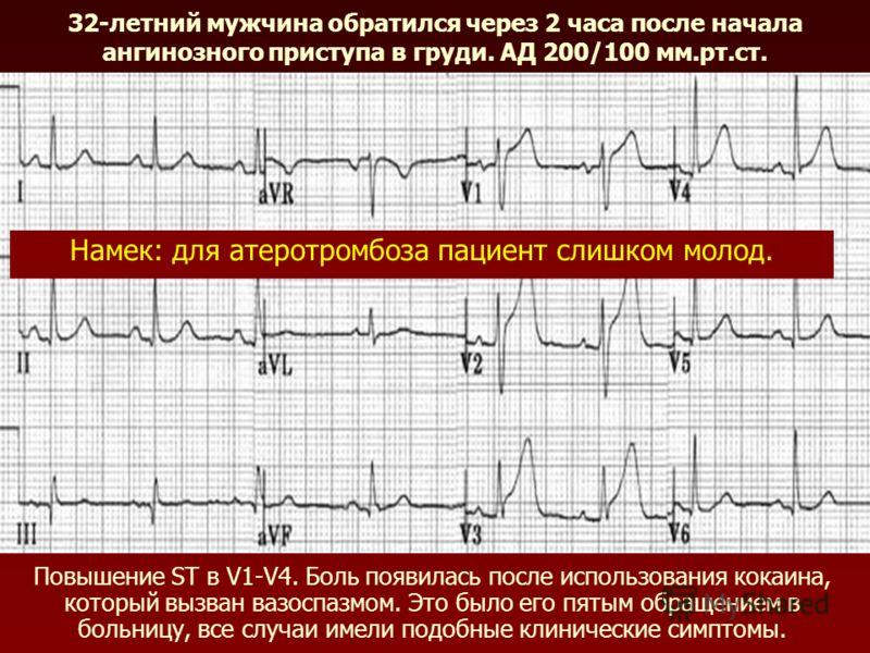 32-летний мужчина обратился через 2 часа после начала ангинозного приступа в груди. АД 200/100 мм.рт.ст. Повышение ST в V1-V4. Боль появилась после использования кокаина, который вызван вазоспазмом. Это было его пятым обращением в больницу, все случа