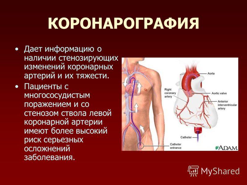КОРОНАРОГРАФИЯ Дает информацию о наличии стенозирующих изменений коронарных артерий и их тяжести. Пациенты с многососудистым поражением и со стенозом ствола левой коронарной артерии имеют более высокий риск серьезных осложнений заболевания.
