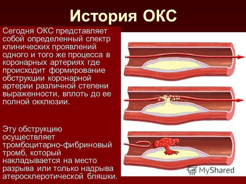 История ОКС Сегодня ОКС представляет собой определенный спектр клинических проявлений одного и того же процесса в коронарных артериях где происходит формирование обструкции коронарной артерии различной степени выраженности, вплоть до ее полной окклюз