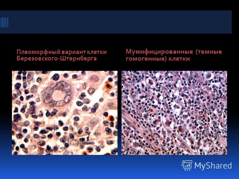 Плеоморфный вариант клетки Березовского-Штернберга Мумифицированные (темные гомогенные) клетки