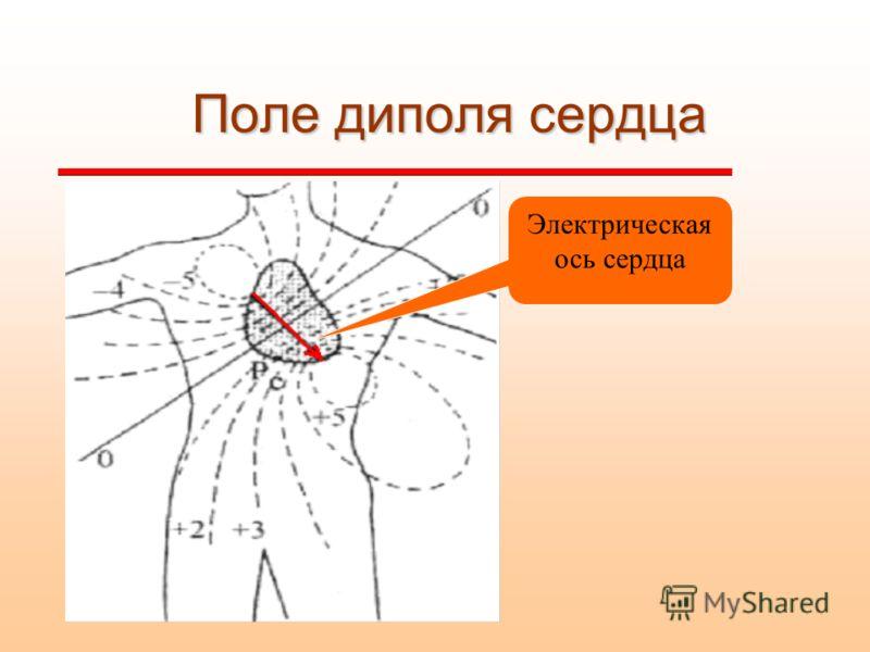 Поле диполя сердца Электрическая ось сердца
