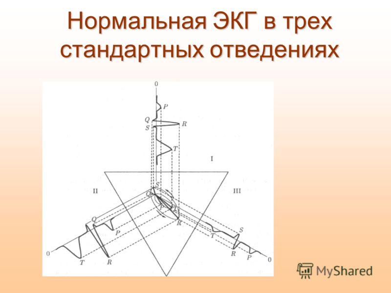 Нормальная ЭКГ в трех стандартных отведениях