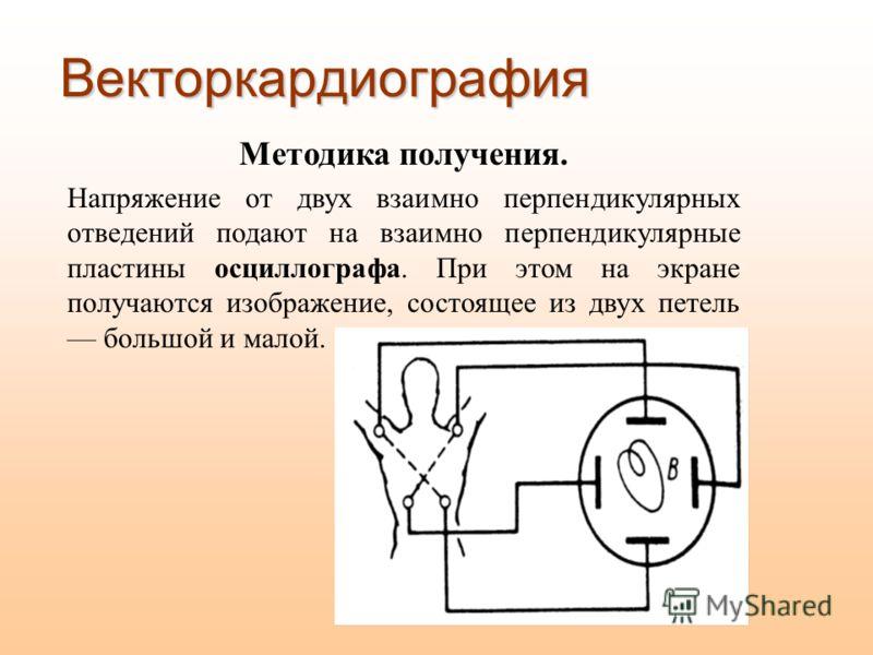 Векторкардиография Методика получения. Напряжение от двух взаимно перпендикулярных отведений подают на взаимно перпендикулярные пластины осциллографа. При этом на экране получаются изображение, состоящее из двух петель большой и малой.