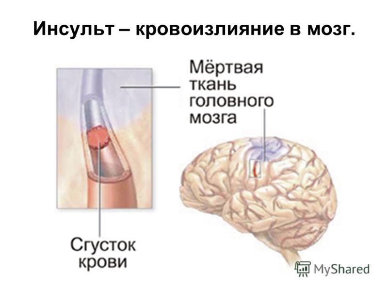 головокружение без головной боли форум