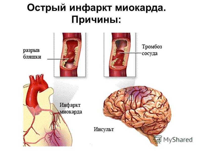 Инфаркт Миокарда фото