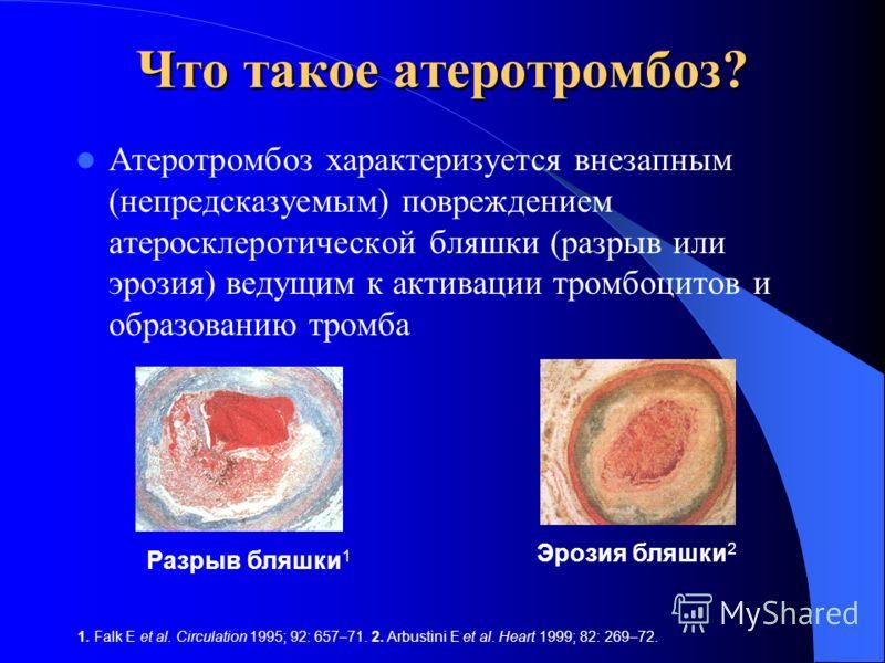 Что такое атеротромбоз? Атеротромбоз характеризуется внезапным (непредсказуемым) повреждением атеросклеротической бляшки (разрыв или эрозия) ведущим к активации тромбоцитов и образованию тромба Атеротромбоз является основой таких сосудистых катастроф