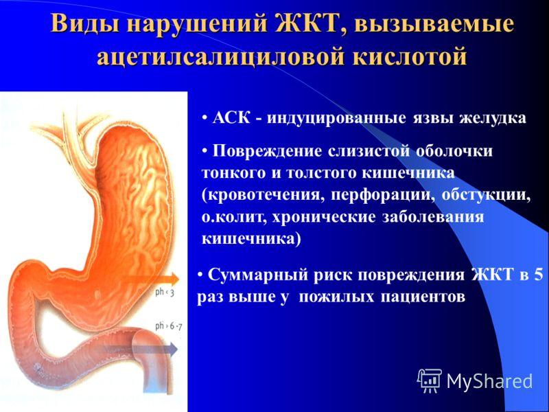 Виды нарушений ЖКТ, вызываемые ацетилсалициловой кислотой АСК - индуцированные язвы желудка Повреждение слизистой оболочки тонкого и толстого кишечника (кровотечения, перфорации, обстукции, о.колит, хронические заболевания кишечника) Суммарный риск п
