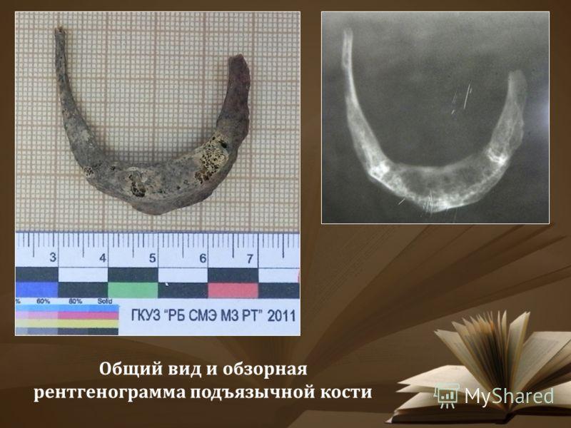 Общий вид и обзорная рентгенограмма подъязычной кости