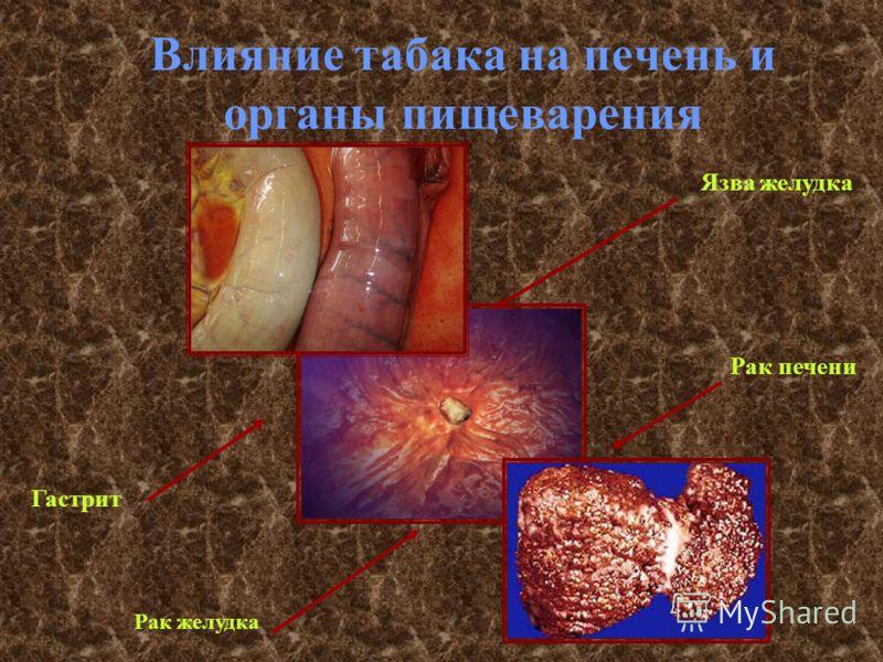 Влияние табака на печень и органы пищеварения Рак желудка Гастрит Рак печени Язва желудка