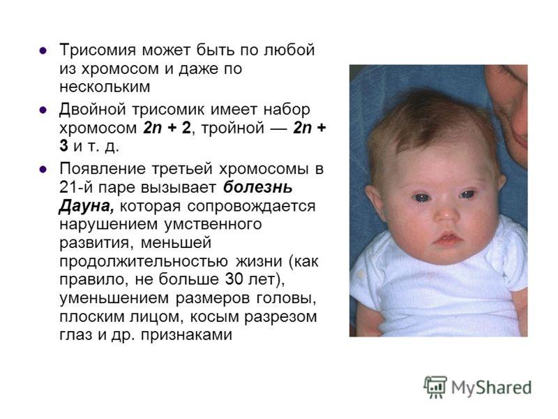 Трисомия может быть по любой из хромосом и даже по нескольким Двойной трисомик имеет набор хромосом 2n + 2, тройной 2n + 3 и т. д. Появление третьей хромосомы в 21-й паре вызывает болезнь Дауна, которая сопровождается нарушением умственного развития,