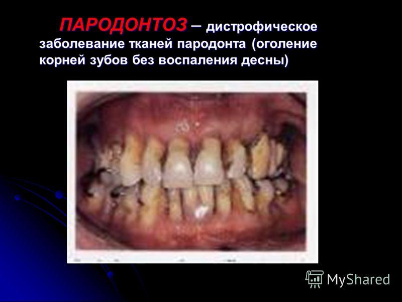 ПАРОДОНТИТ – воспаление тканей пародонта.