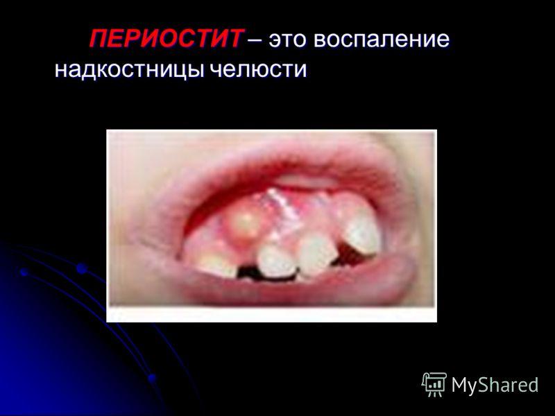 ПАРОДОНТОЗ – дистрофическое заболевание тканей пародонта (оголение корней зубов без воспаления десны) ПАРОДОНТОЗ – дистрофическое заболевание тканей пародонта (оголение корней зубов без воспаления десны)