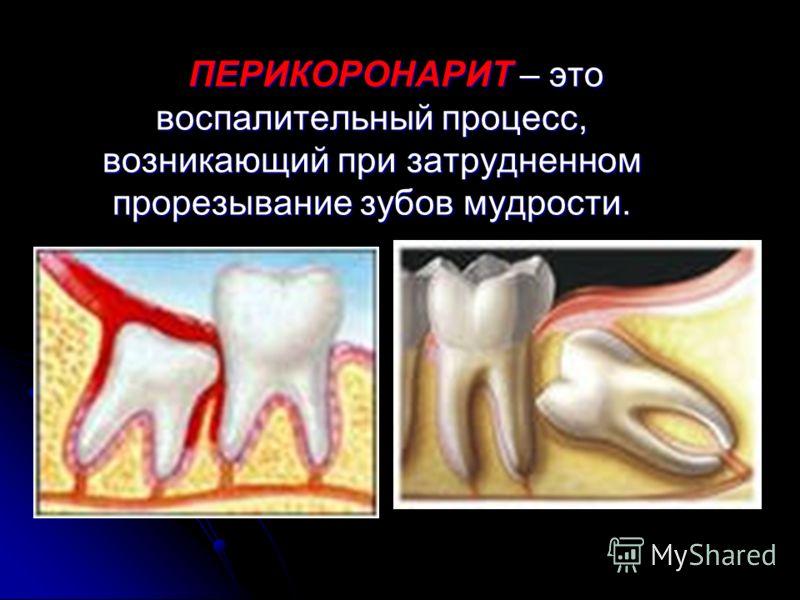 ПЕРИОСТИТ – это воспаление надкостницы челюсти ПЕРИОСТИТ – это воспаление надкостницы челюсти