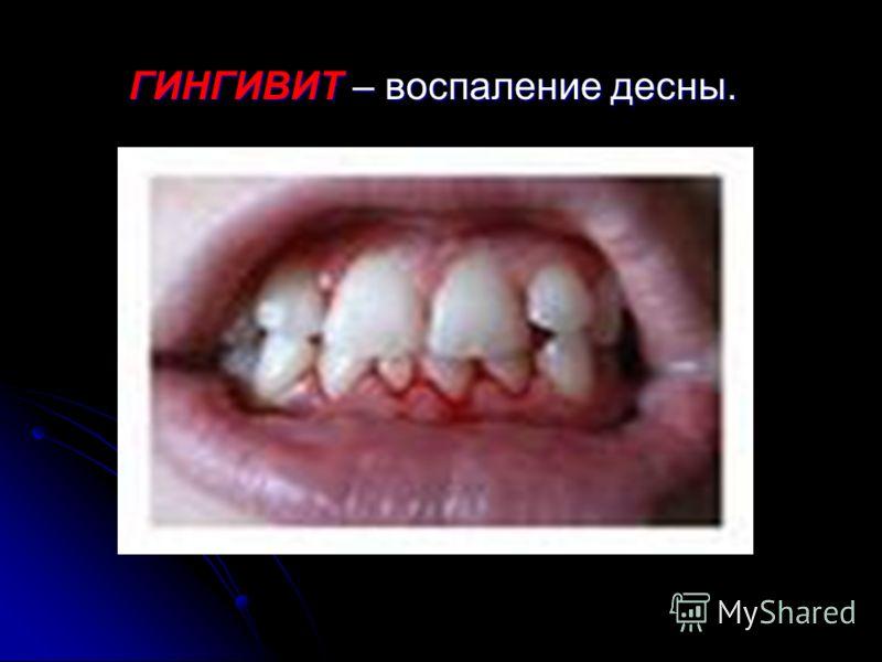 ПЕРИОДОНТИТ – это воспалительное заболевание периодонта.