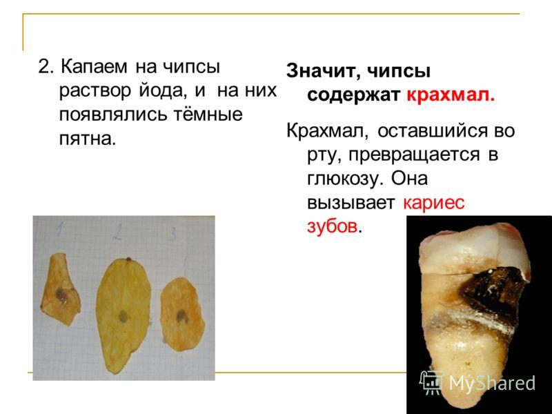 2. Капаем на чипсы раствор йода, и на них появлялись тёмные пятна. Значит, чипсы содержат крахмал. Крахмал, оставшийся во рту, превращается в глюкозу. Она вызывает кариес зубов.