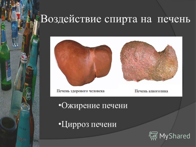Воздействие спирта на печень Ожирение печени Цирроз печени
