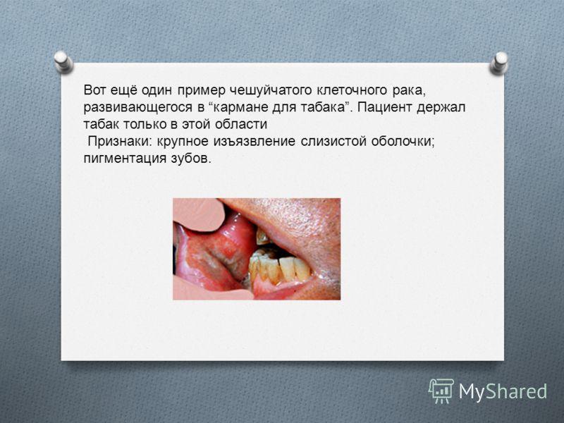 Вот ещё один пример чешуйчатого клеточного рака, развивающегося в кармане для табака. Пациент держал табак только в этой области Признаки: крупное изъязвление слизистой оболочки; пигментация зубов.