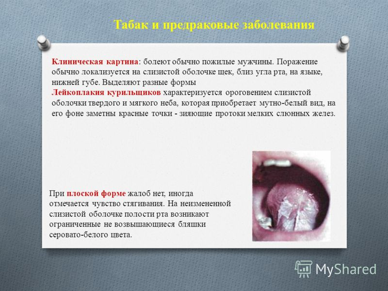 Табак и предраковые заболевания Клиническая картина: болеют обычно пожилые мужчины. Поражение обычно локализуется на слизистой оболочке щек, близ угла рта, на языке, нижней губе. Выделяют разные формы Лейкоплакия курильщиков характеризуется ороговени