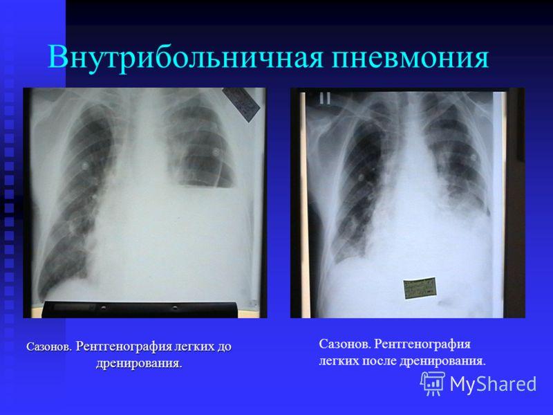 Внутрибольничная пневмония Сазонов. Рентгенография легких до дренирования. Сазонов. Рентгенография легких после дренирования.