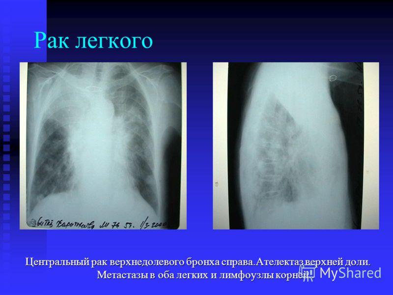 Рак легкого Центральный рак верхнедолевого бронха справа.Ателектаз верхней доли. Метастазы в оба легких и лимфоузлы корней..