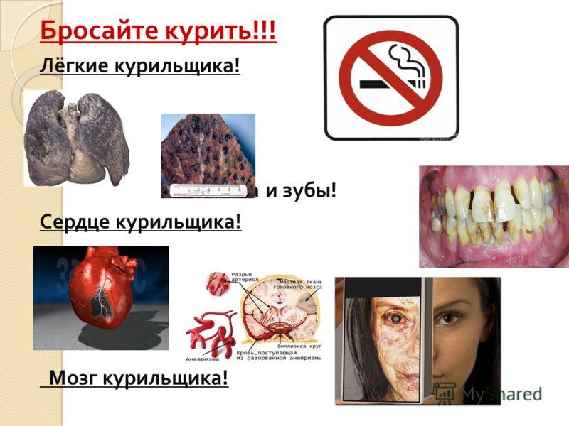 Статистические данные. Курение снижает продолжительность жизни на 10-15 лет ; По данным ВОЗ, каждый пятый умирающий в мире - жертва табака ; Токсичность табачного дыма в 4,5 раза превышает токсичность выхлопных газов автомобиля ; При курении 25% вред