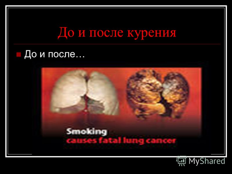 До и после курения До и после…