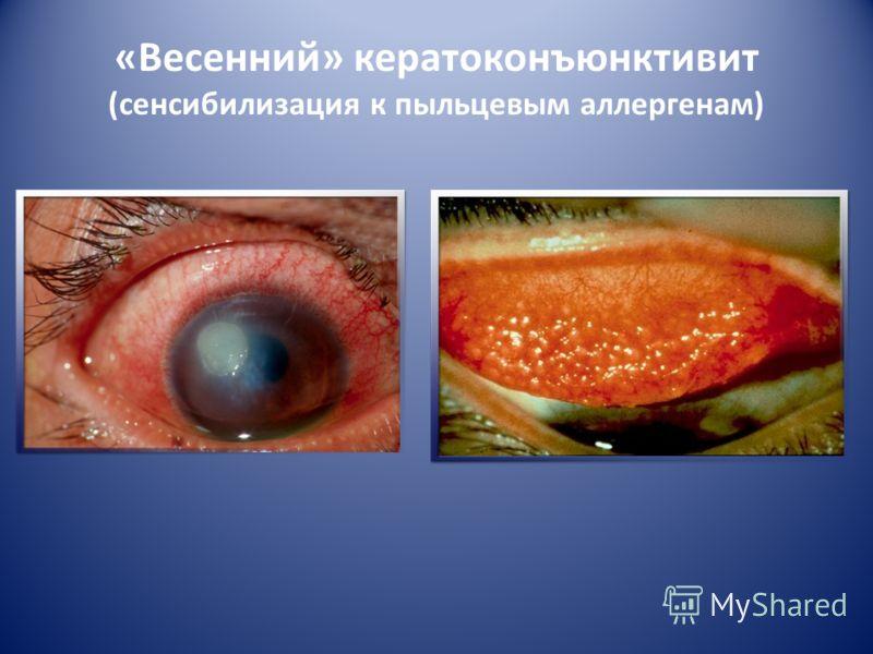 Аллергические заболевания глаз