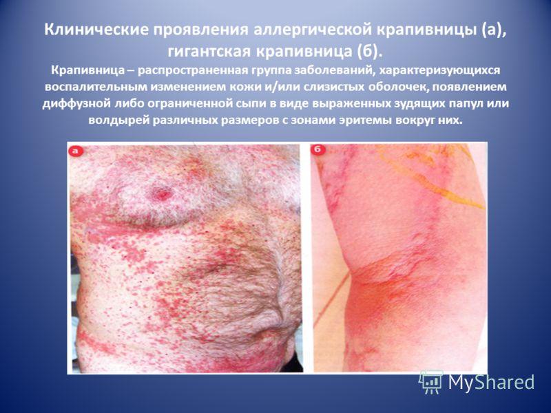 «Весенний» кератоконъюнктивит (сенсибилизация к пыльцевым аллергенам)